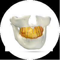 guia-corticotomia